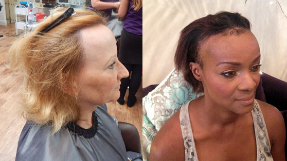 Two women with Frontal Fibrosing Alopecia showing receding hair line
