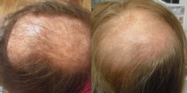 Top view of women suffereign female pattern hair loss