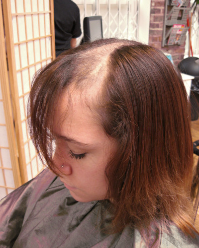 The Intralace System as an alternative to human hair wigs - Lucinda ... 244a35283