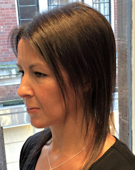 Female Pattern Hair Loss Androgenetic Alopecia Lucinda