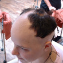 Alopecia case before treatment