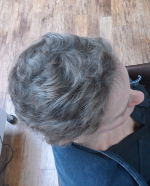 Jacquie's own hair had been growing back underneath the Intralace System