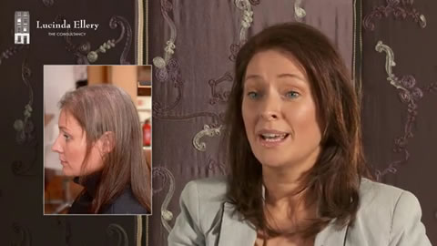 Client L Reviews her experience of hair loss
